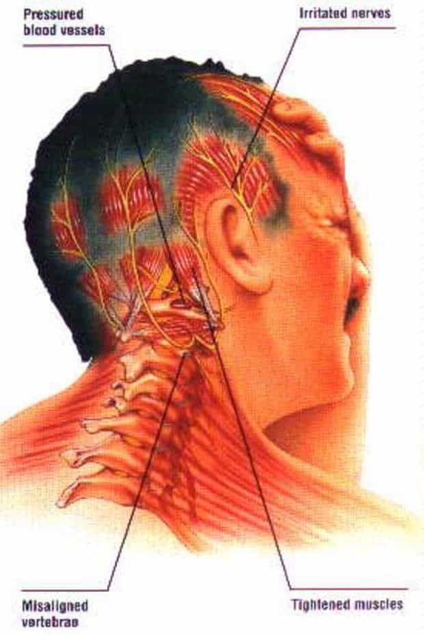how to help neck pain and headaches