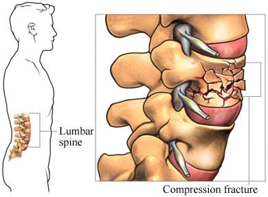 crumbling spine
