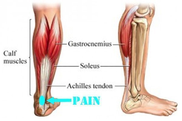 4 Myths About Tendonitis